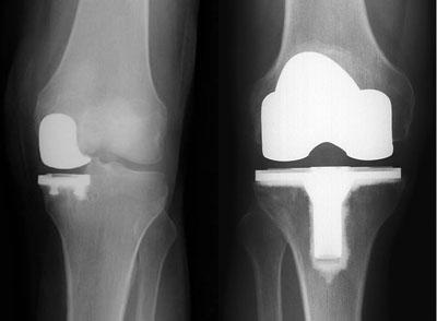 uni-knee